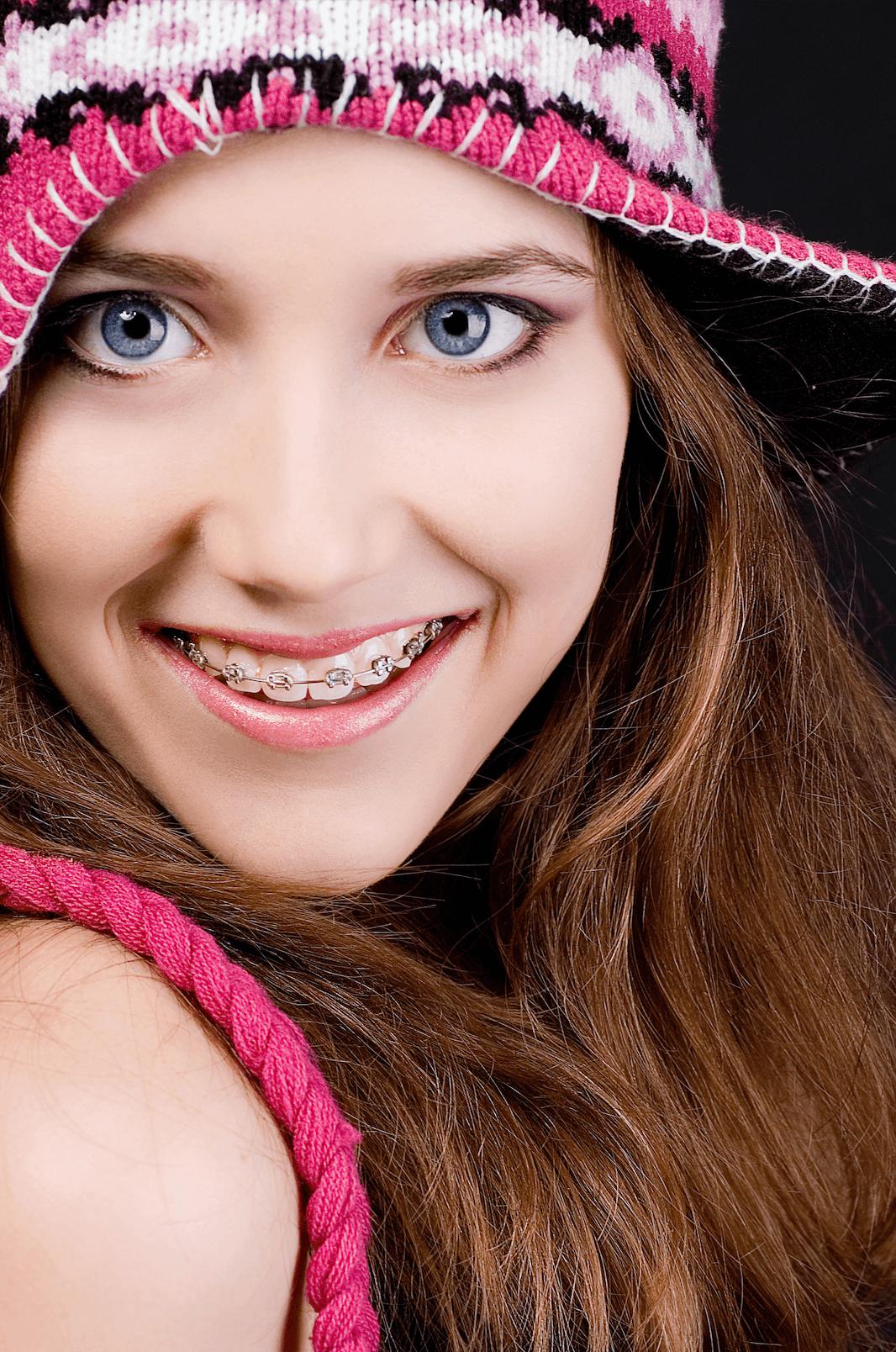 Cómo Funciona la Ortodoncia: Frenillos